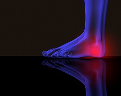 Heel Pain Help By The Ankle and Foot Clinic Omaha, NE